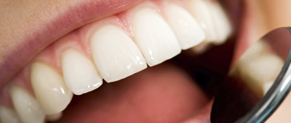 ¿Es el momento para una endodoncia?