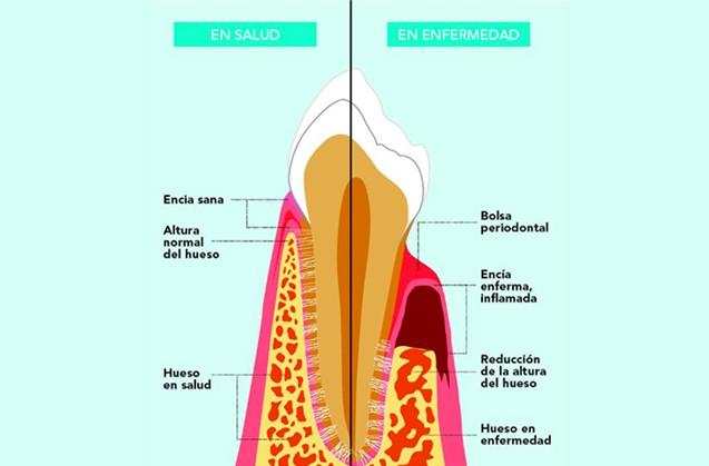 Mantener sano tu periodonto
