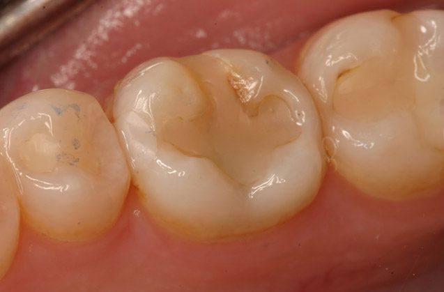 ¿Se deben de cambiar los empastes dentales por nuevos?