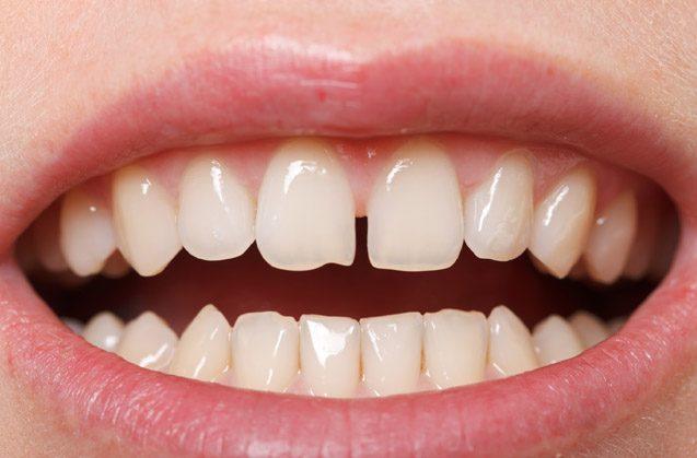 Mis dientes se separan