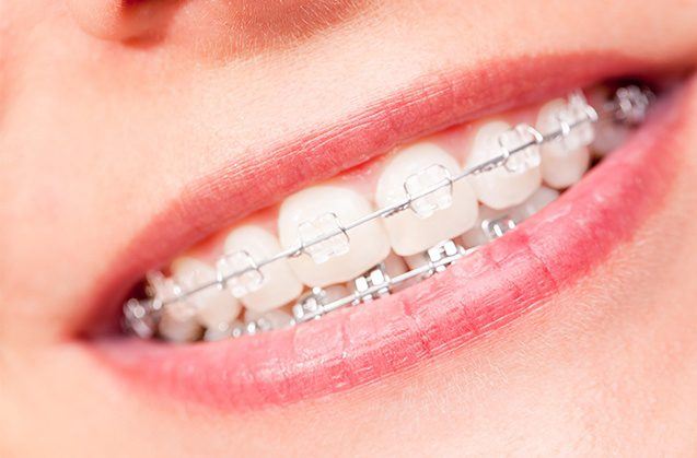 Resolviendo dudas sobre el  cuidado de  tu ortodoncia