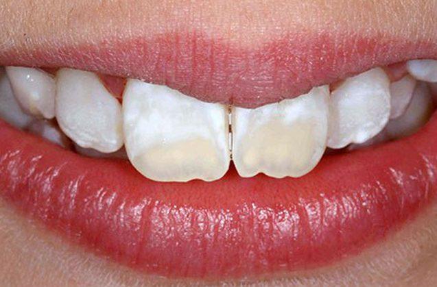 Manchas en los dientes ¿por qué ocurre?