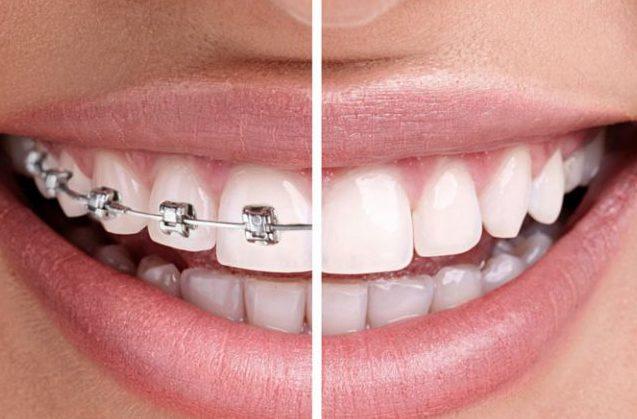 ¿Qué motivos hay para poner ortodoncia?
