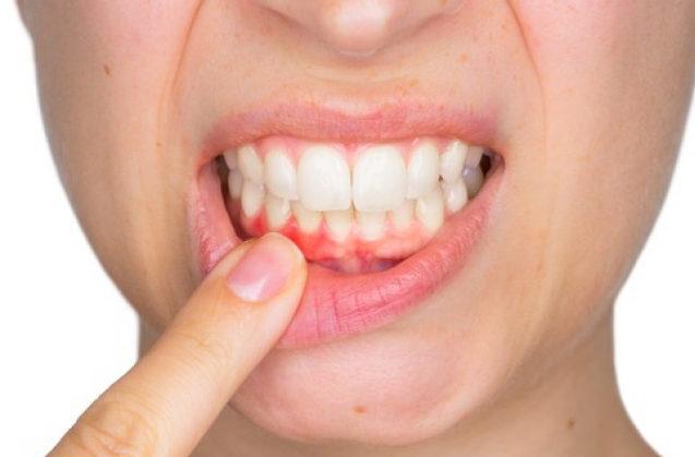 La gingivitis y su tratamiento