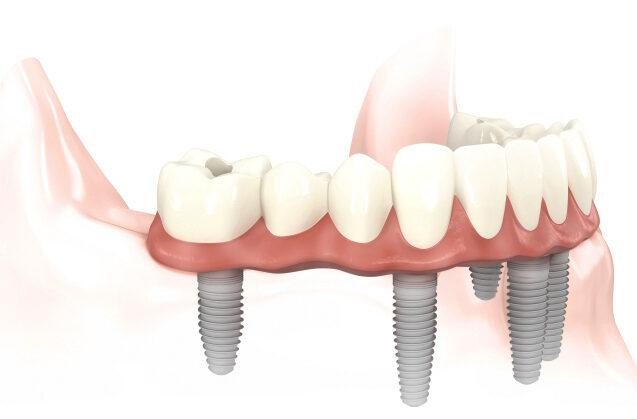 Implantes como solución protésica